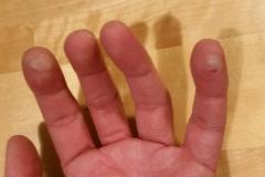 Finger kaputt